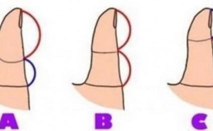 Baş barmağının forması belə olanlar