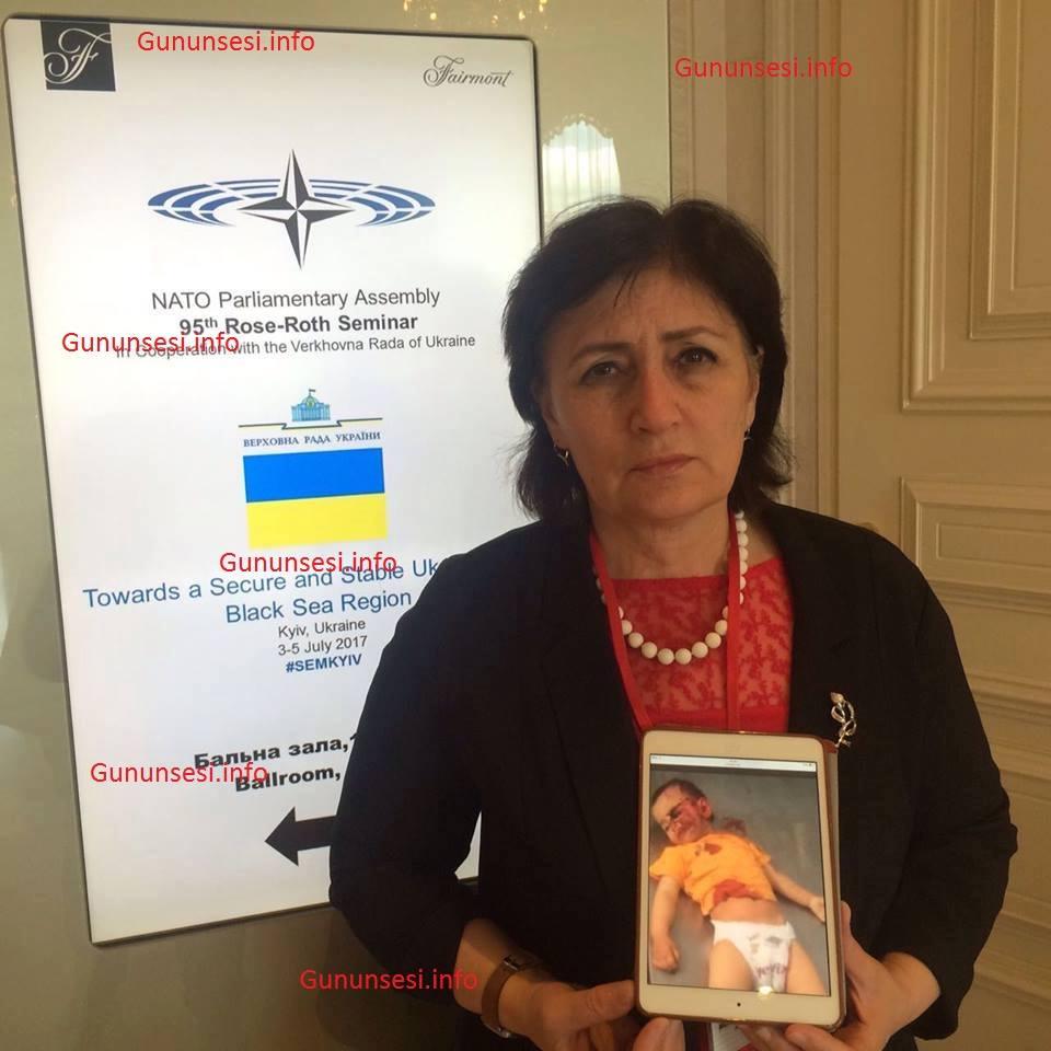 2 yaşlı Zəhranın qanlı fotosu NATO-nun tədbirində nümayiş etdirildi