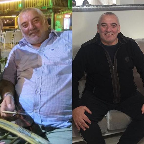 Aktyor 44 kilo arıqladı