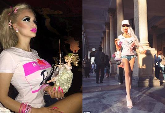 """""""Barbie""""yə bənzəmək üçün bıçaq altına girdi"""