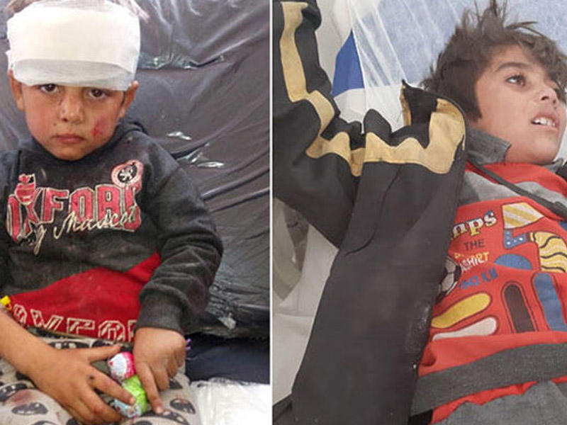 Terrorçu PKK Suriyada məktəbi bombaladı – Ölənlər və yaralananlar var