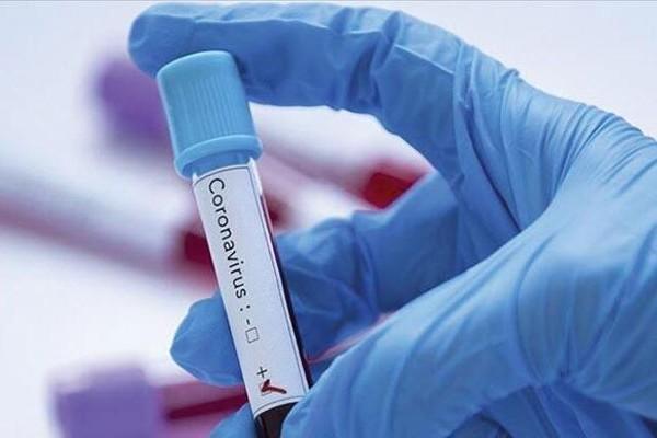 Koronavirusa yoluxma bu dövrdə arta bilər