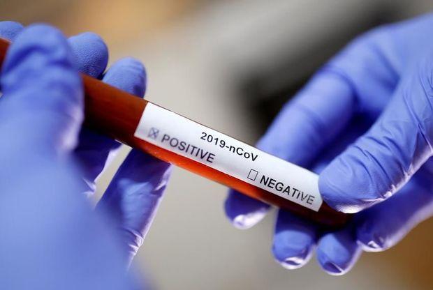Ukraynada daha 17 nəfər koronavirus qurbanı oldu