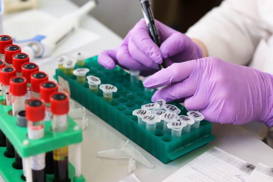 Azərbaycanda koronavirusla bağlı testlərin sayı 380 mini ötdü